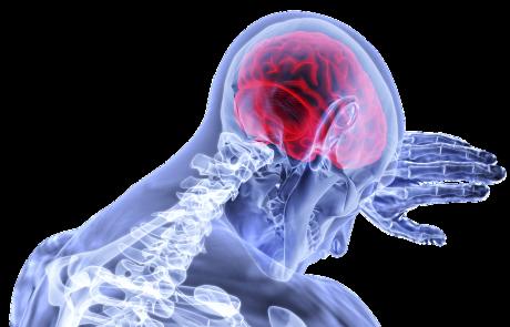 הפתרון הטכנולוגי הקטן הזה יציל את החיים שלכם בעת שבץ מוחי